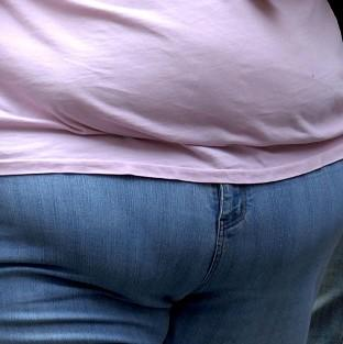 Lancaster And Morecambe Citizen: More then two million people could qualify for weight loss surgery, researchers say