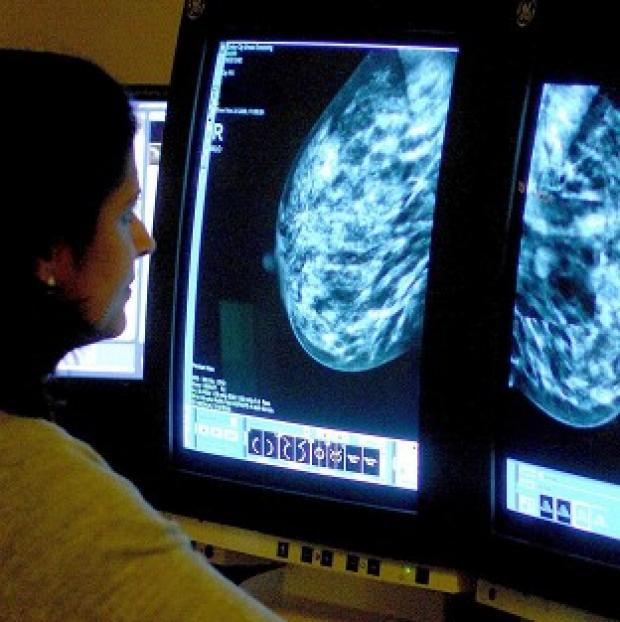 Lancaster And Morecambe Citizen: Many women having mastectomies would have been better treated with a lumpectomy, say researchers