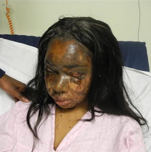 Lancaster And Morecambe Citizen: Naomi Oni, who was scarred for life in an acid attack, has accused police of incompetence over the investigation (Met Police)