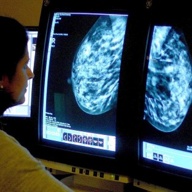 Lancaster And Morecambe Citizen: Heavy consumption of saturated fat raises the risk of hormone-sensitive breast cancer by 28%