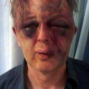"Lancaster And Morecambe Citizen: The victim of the burglary was subjected to ""extreme"" violence"